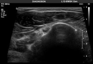 USG barku – wysięk w pochewce ścięgna głowy długiej m. dwugłowego ramienia
