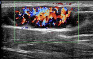 USG doppler Bardzo bogate ukrwienie węzła. Wzorzec unaczynienia odwnękowy. Pacjent z mononukleozą